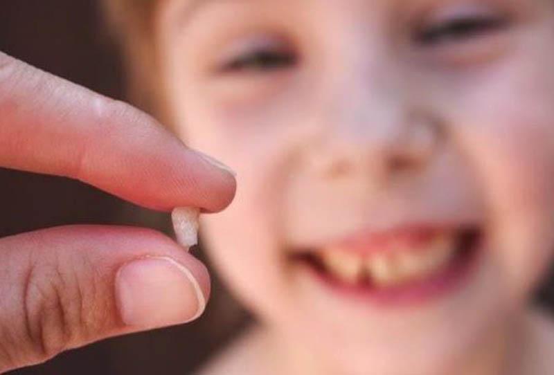 Những giấc mơ thấy rụng răng có ý nghĩa gì đặc biệt ?